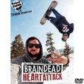 THINK THANK is Brain Dead and Having a Heart Attack DVD